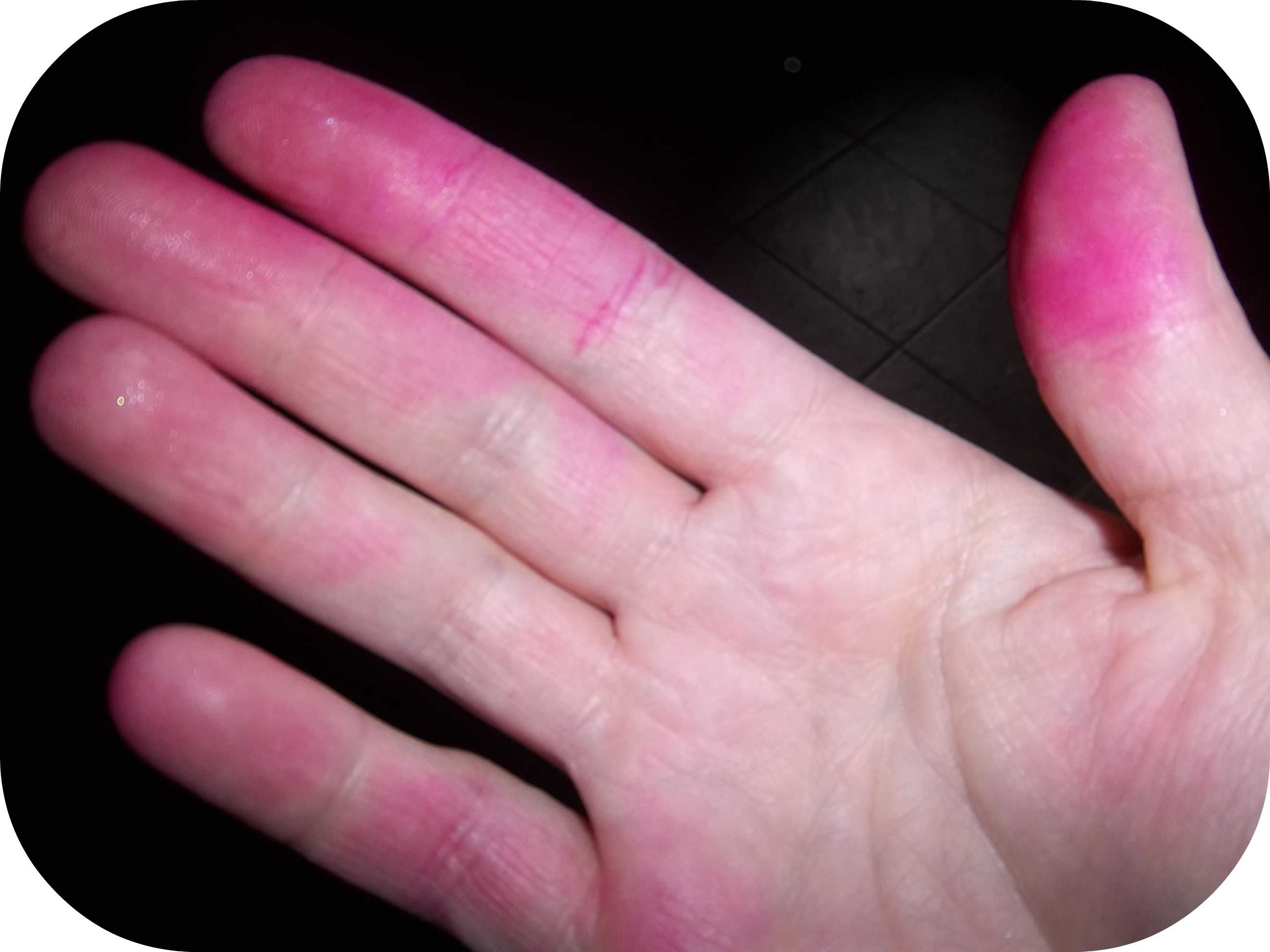 Why my Hands are Stained Pink….