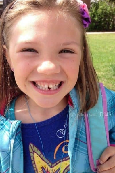 Twin Jealousy is Causing Her Teeth to Fall Out. Maybe.