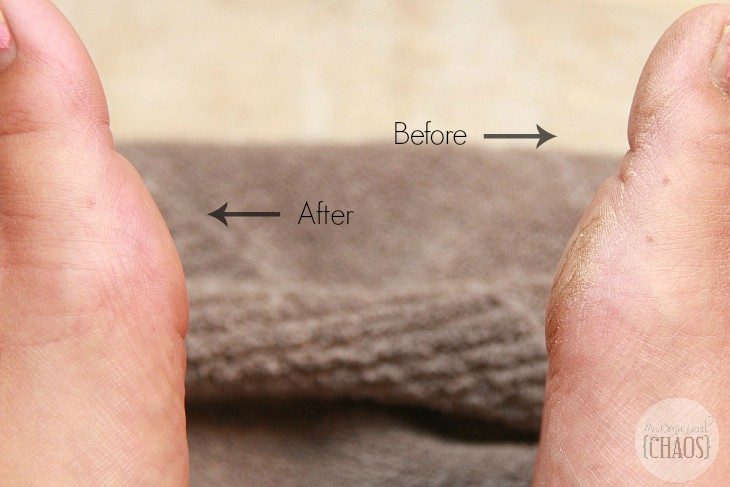 Amopé Pedi Perfect review before and after